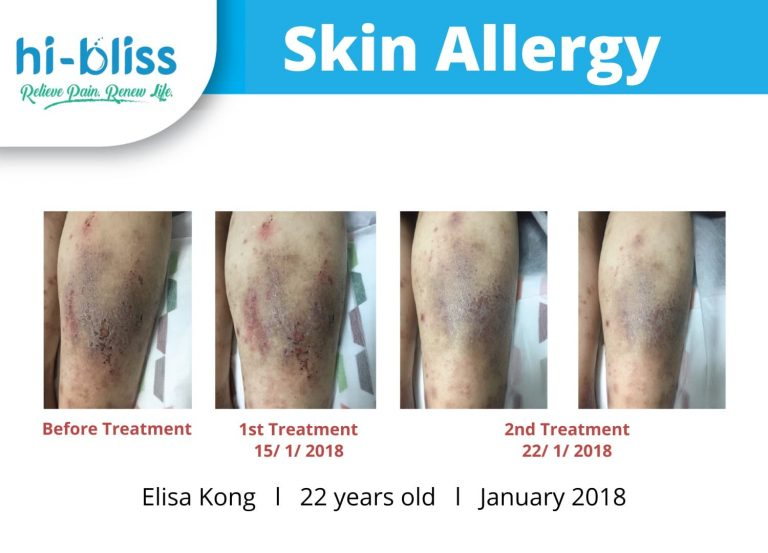 skin therapy before after 03