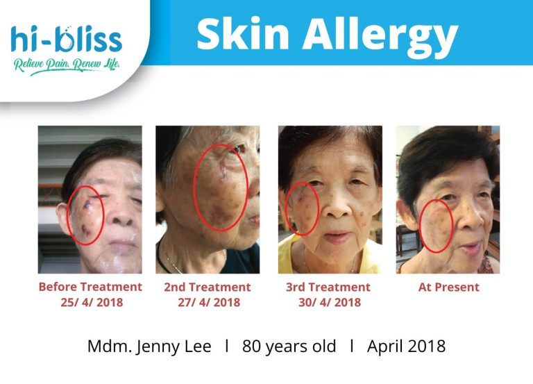 skin therapy before after 04