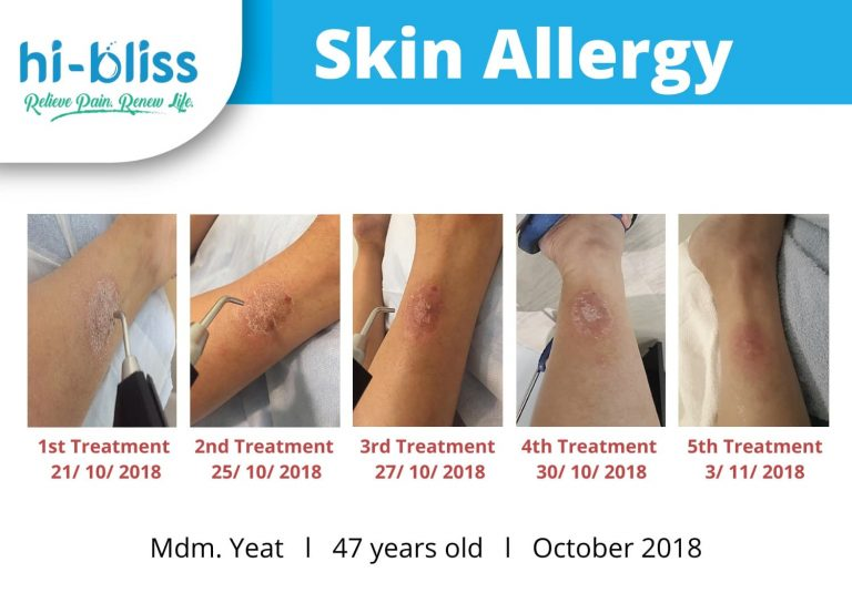 skin therapy before after 05